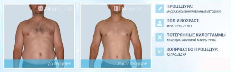 массаж для похудения до и после фото