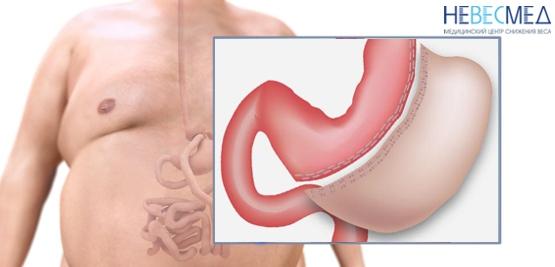Лавакол отзывы очищение кишечника для похудения цена